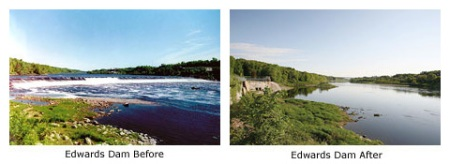 edwards-before-after